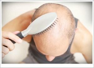 saç ekimi izmir